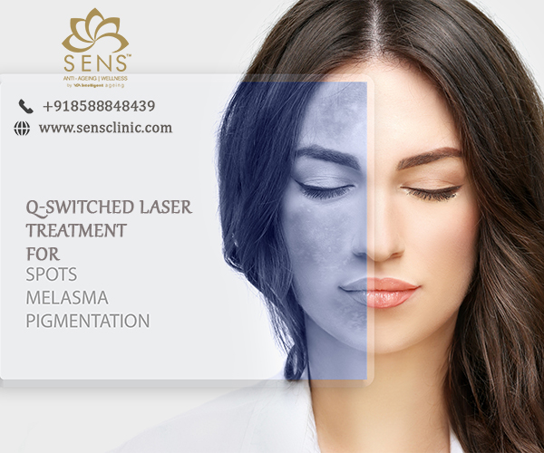 Q - switch laser treatment for pigmentation