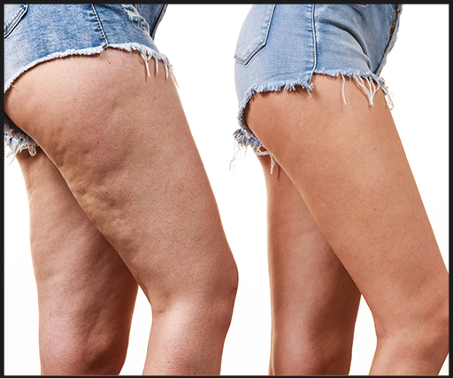 cellulite reduction treatment in delhi